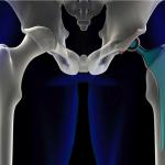 Stryker Hip Implants Continue to Fail, Causing Patients Unnecessary Pain and Injury